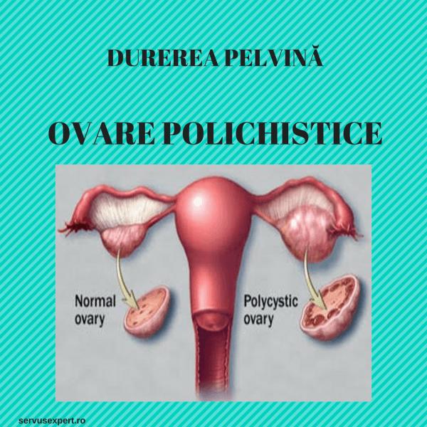 încercând să piardă în greutate cu ovare polichistice