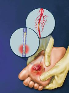 diabet: neuropatie diabetică
