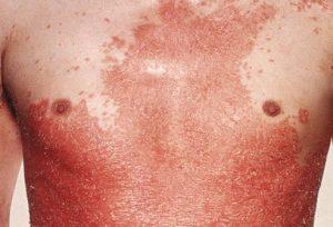 tipuri de psoriazis: psoriazis eritrodermic exfoliativ