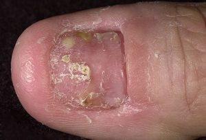 psoriazis al unghiilor