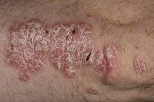 tipuri de psoriazis: psoriazis cu placarde