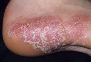 tipuri de psoriazis: psoriazis pustular