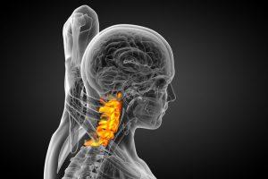 spondiloza cervicală: ce tratament există