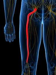 durere de spate: lombosciatica