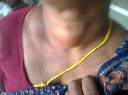 tiroida și oboseala