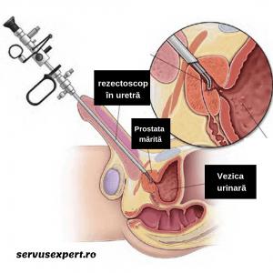Produse naturale pentru prevenirea adenomului de prostata