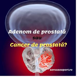 Adenom de prostată sau cancer de prostată: cum ne dăm seama?