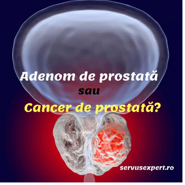adenom de prostata wiki Krónikus prosztatyolaj