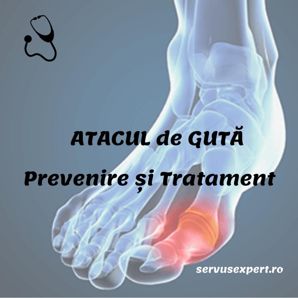 guta tratament - criza de guta picior