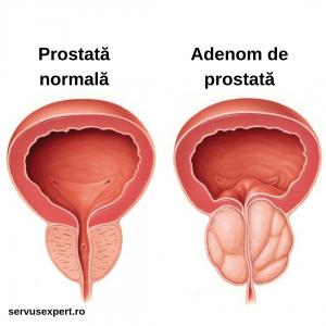 adenom de prostată sau cancer de prostată?