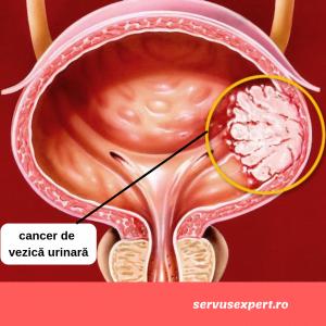 cancer de vezică urinară