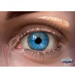 5 cauze pentru ochi uscați