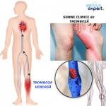 Blocarea arterelor (arterioscleroza)