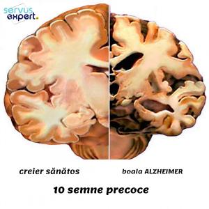 boala Alzheimer: care sunt primele semne