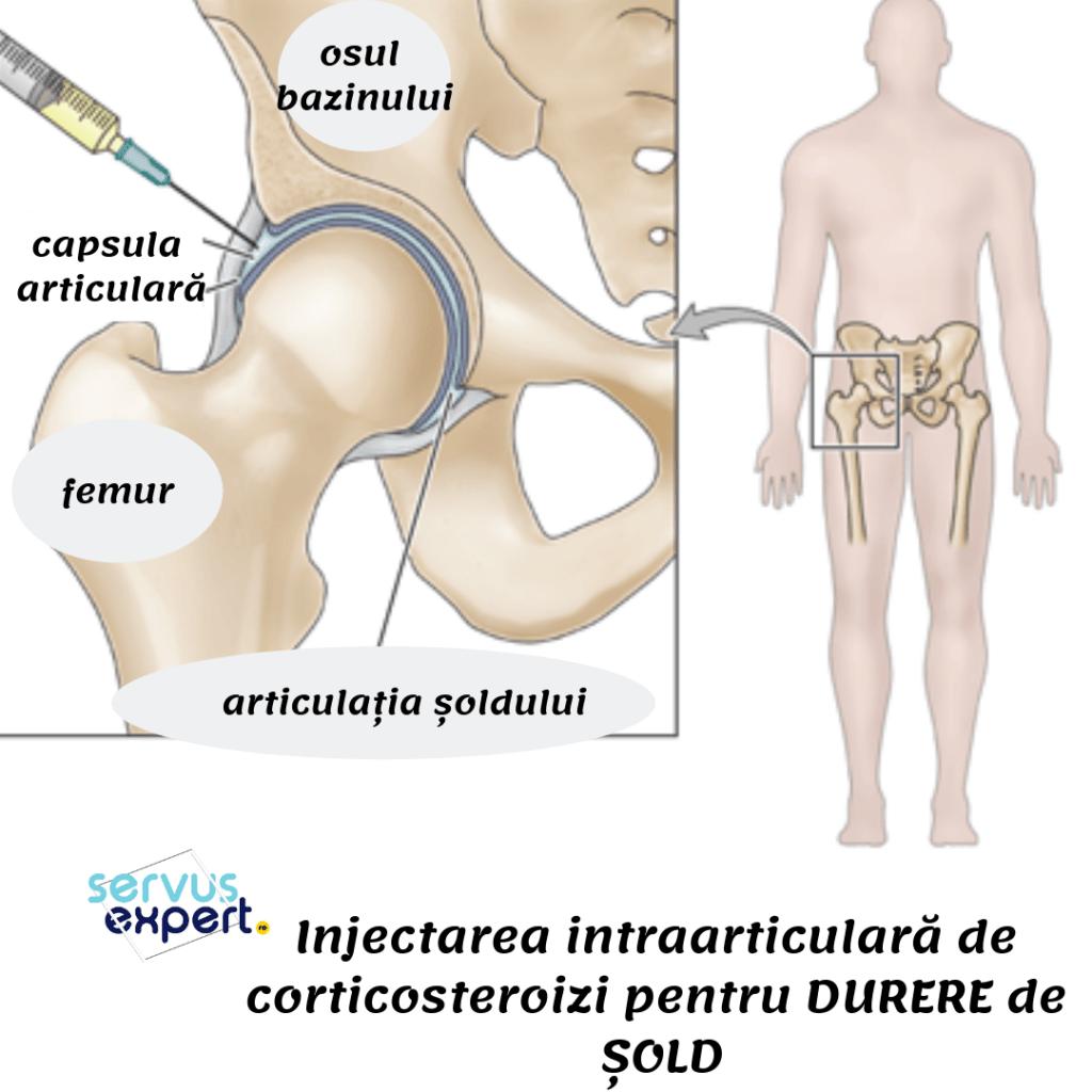 corticosteroizi pentru durere de sold