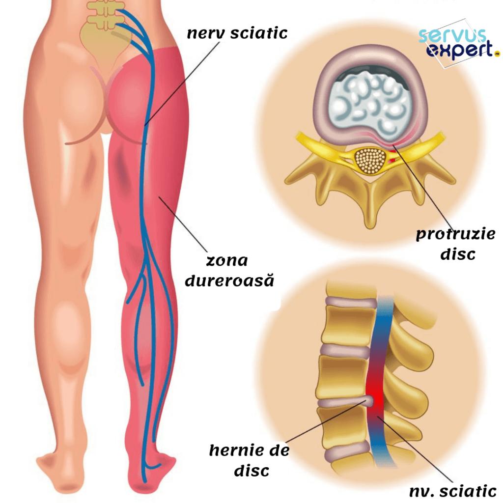 sciatica (durere lombară)
