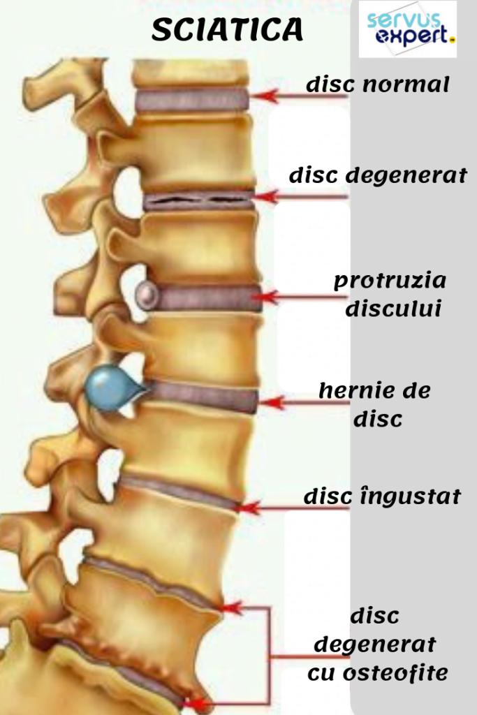 tratament pentru durere de spate
