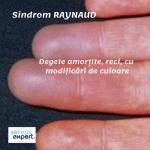 Sindrom RAYNAUD (2)