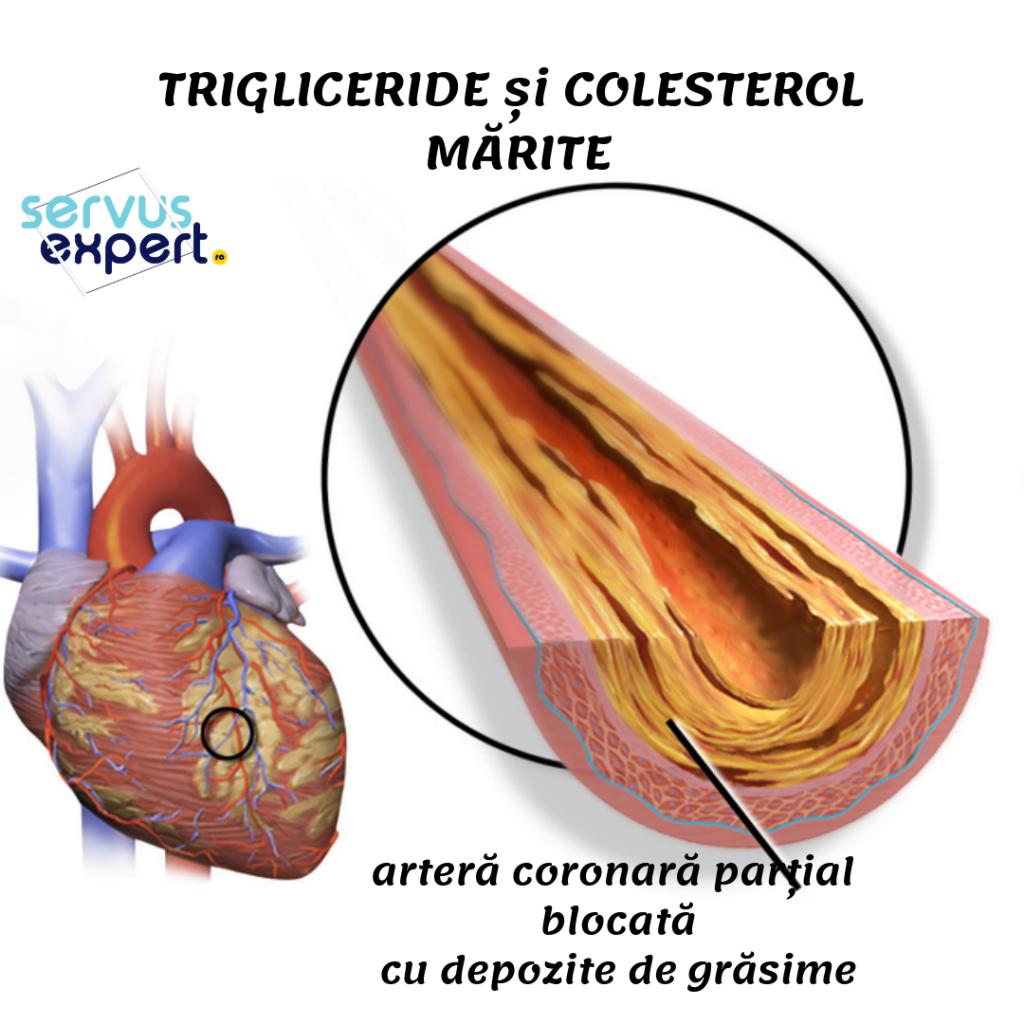 trigliceride mărite