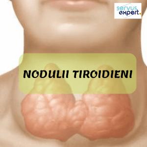 NODULI TIROIDIENI: există risc de cancer tiroidian?