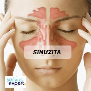 sinuzita acută - ce remedii există?
