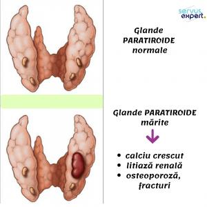 glandele paratiroide și litiaza renală