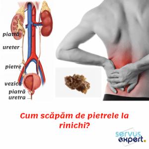 colina renală: cum scăpăm de pietre la rinichi
