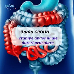 Boala CROHN: cauza pentru durere abdominală
