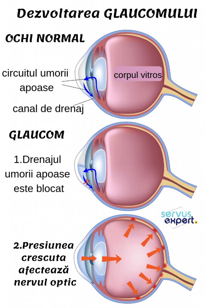 glaucom: cauza de orbire