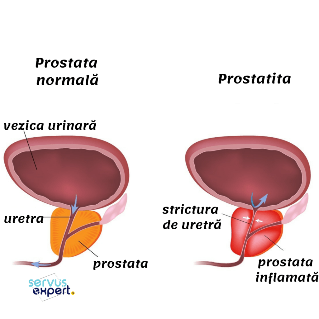 prostata inflamată, prostatita
