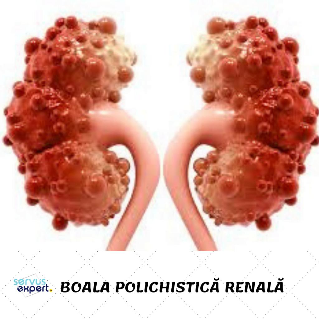 chisturi renale
