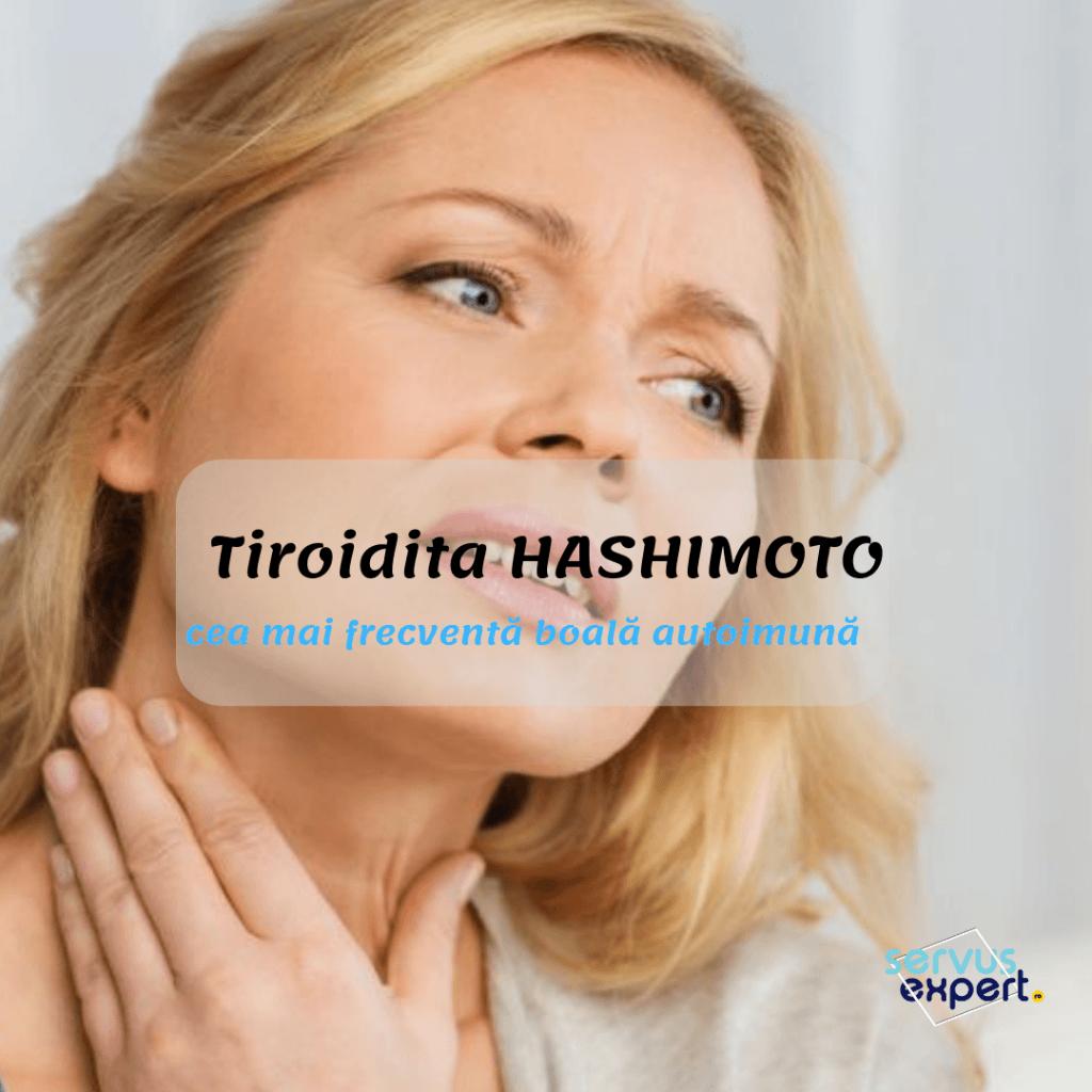 tiroidita hashimoto, gușa