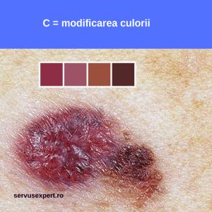 cancer de piele (melanom malign): semne