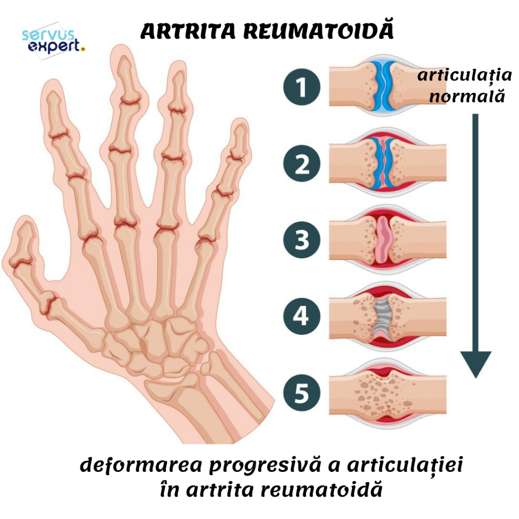 articulatii deformate, artrita reumatoida