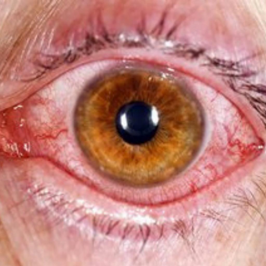 ochi roșii, conjunctivita