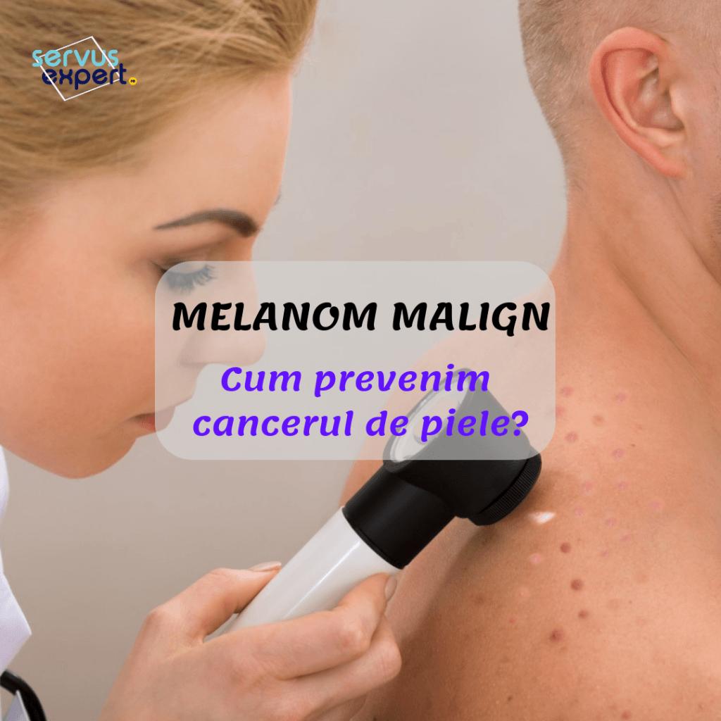 cancer de piele (melanom malign): prevenire