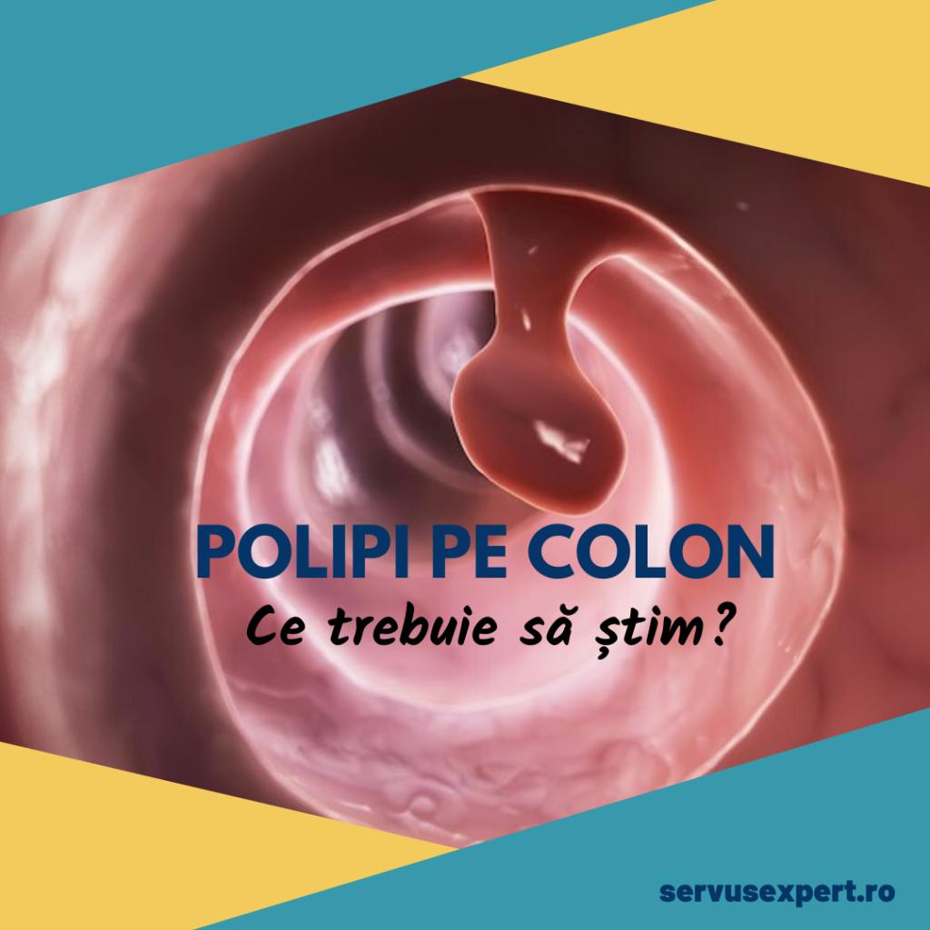 polipi pe colon