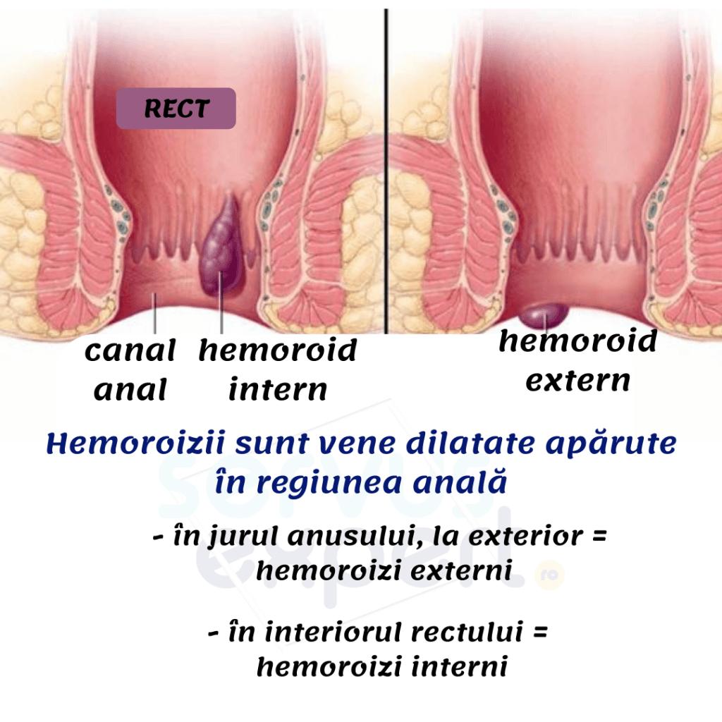 durere rectală ( proctalgia )
