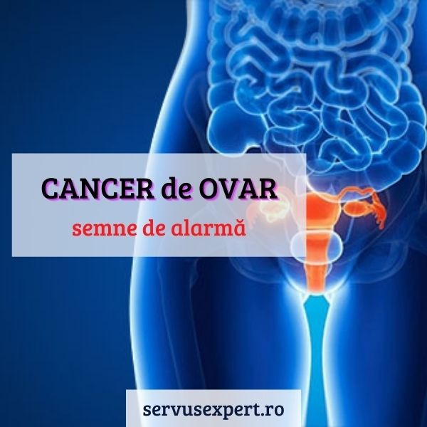 cancer ovarian