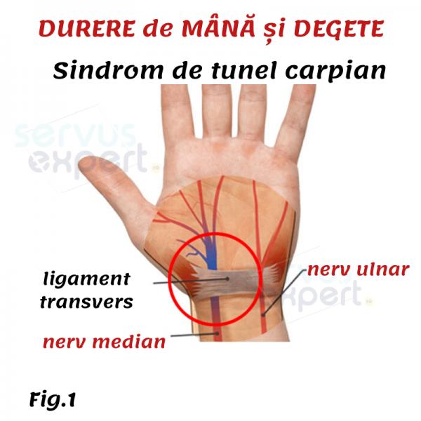Articulația sinovială a degetului inelar doare - articulatia mainii degetelor