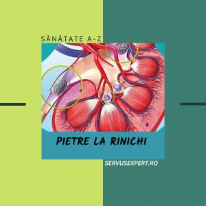 Top 10 metode de prevenire pentru pietre la rinichi