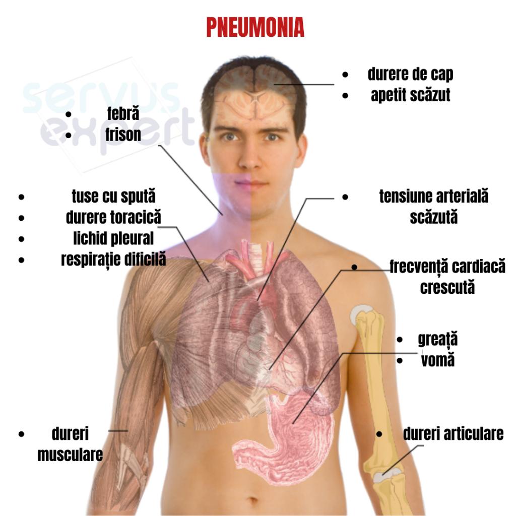 dureri articulare pneumonia)