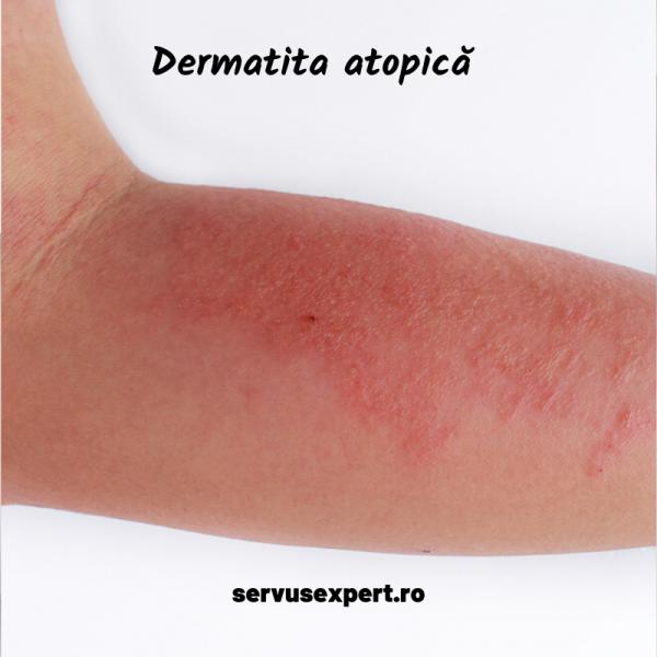 eczema (dermatita atopică)