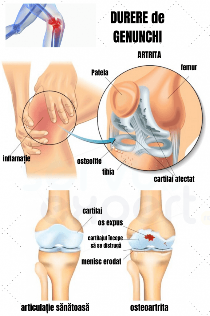 durerile de genunchi inferior cauzează