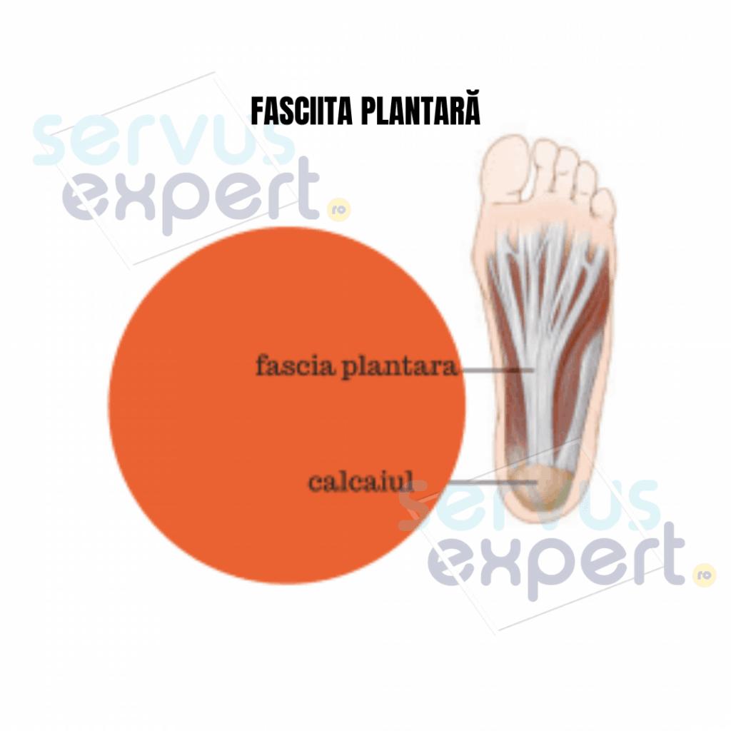 fasciita plantară: durere de talpă și călcâi