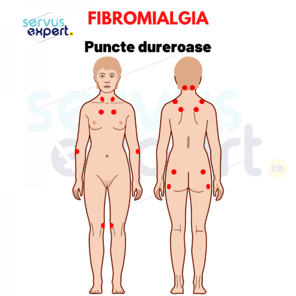 fibromialgia: de ce am durere peste tot