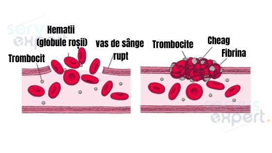 trombocite tromboza, vase de sange