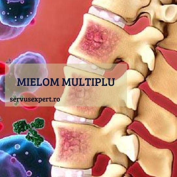 Ce cauzează durerea osoasă în mielomul multiplu. mielom - Fibrom November