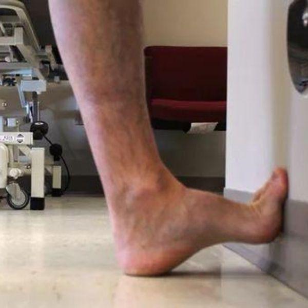 durere de picioare în fasciita plantară: exercitii