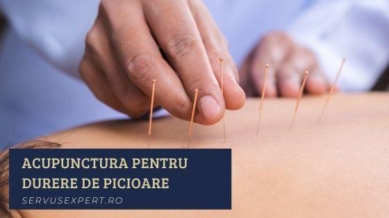 acupunctura pentru dureri de picioare